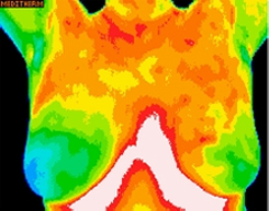 breast anterior thermography image
