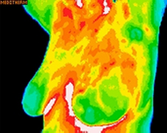 breast left oblique thermography image