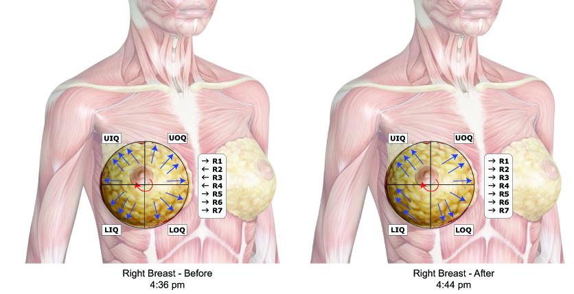 right breast